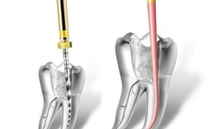 Endodontics / Root Canal Treatment